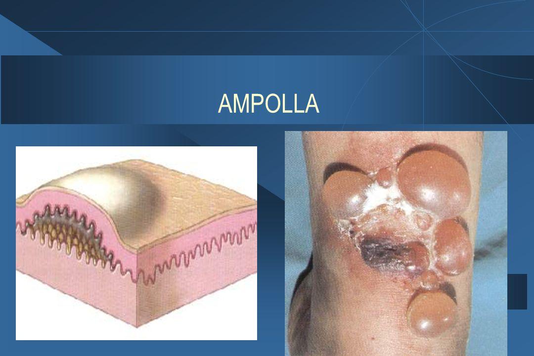 AMPOLLA