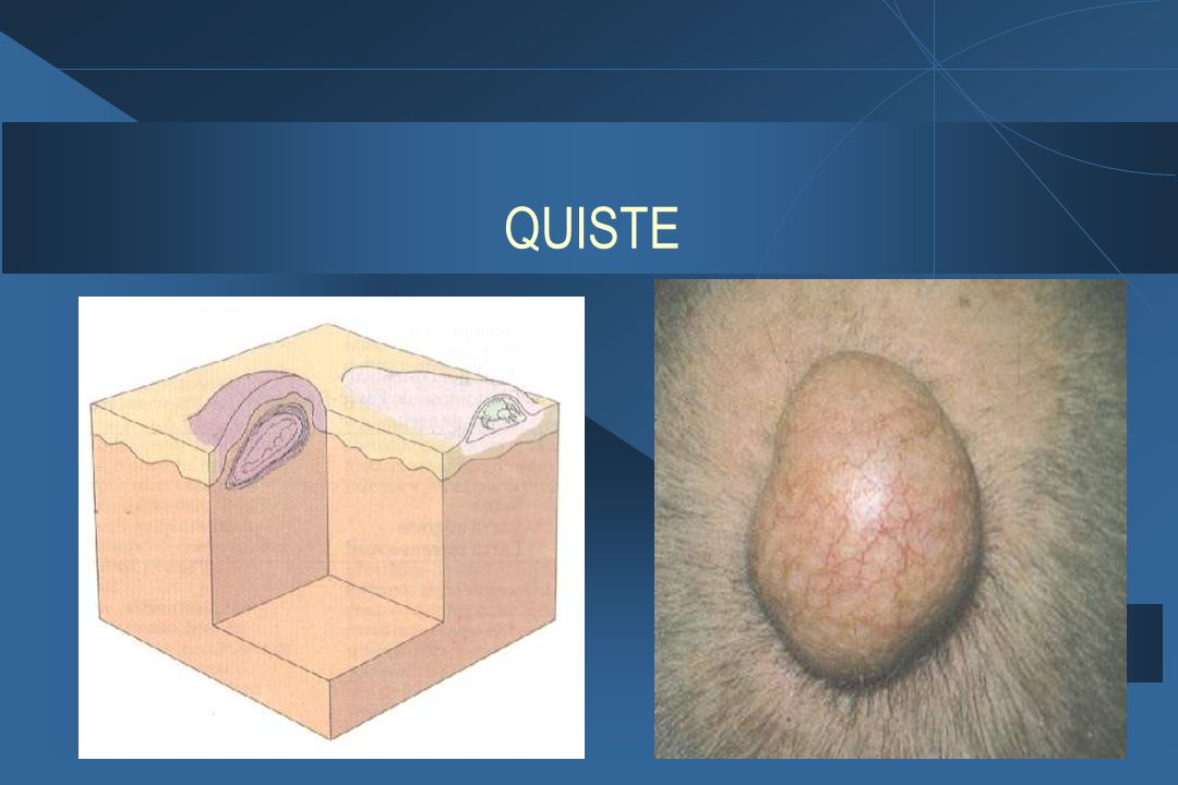 QUISTE