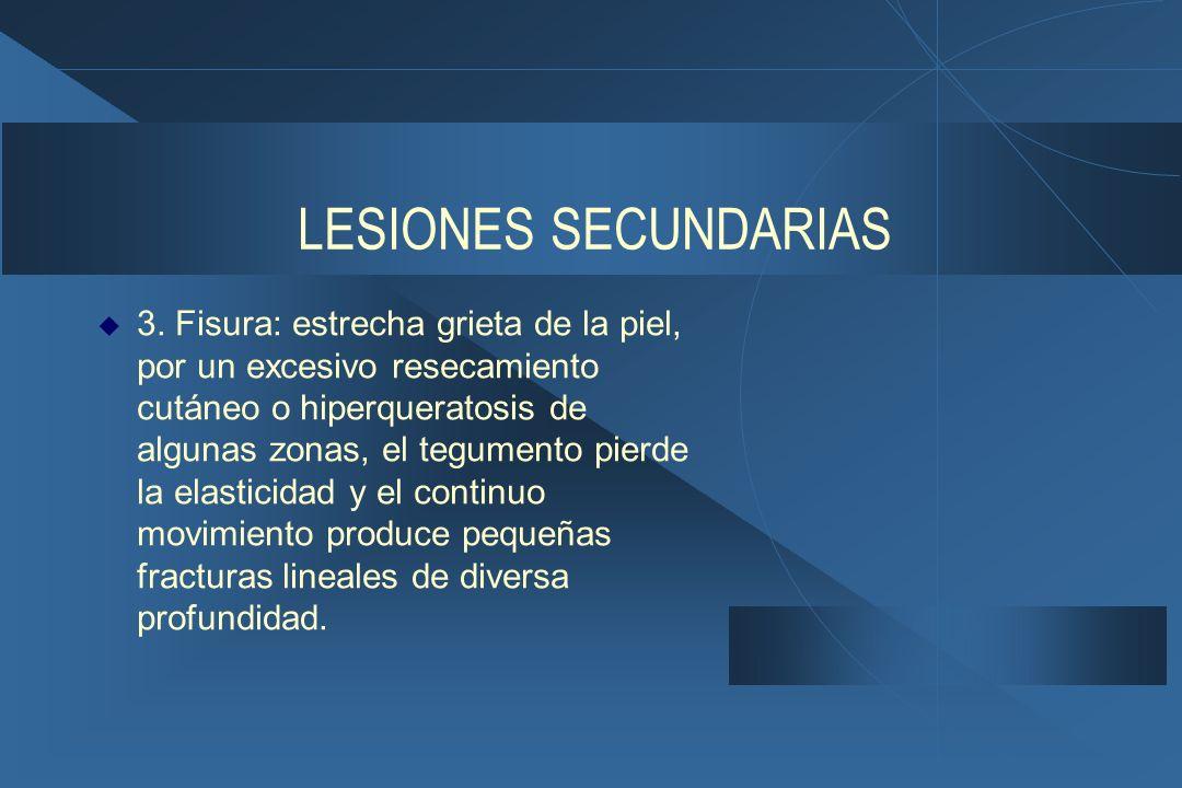 LESIONES SECUNDARIAS