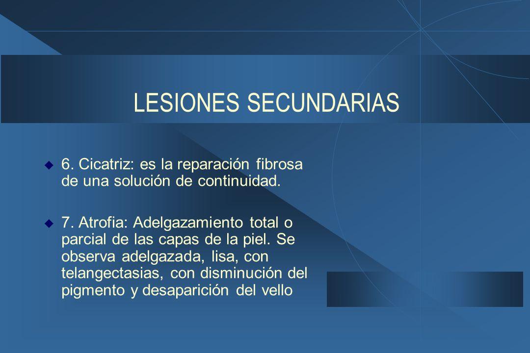LESIONES SECUNDARIAS 6. Cicatriz: es la reparación fibrosa de una solución de continuidad.