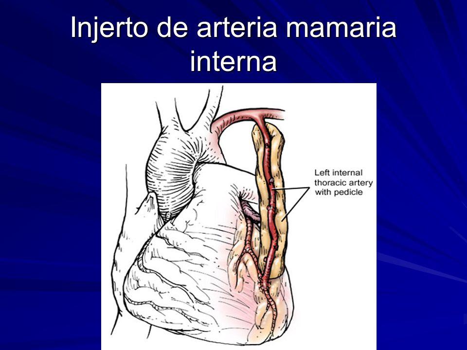 Bonito Mamaria Interna Nodos Anatomía Patrón - Imágenes de Anatomía ...