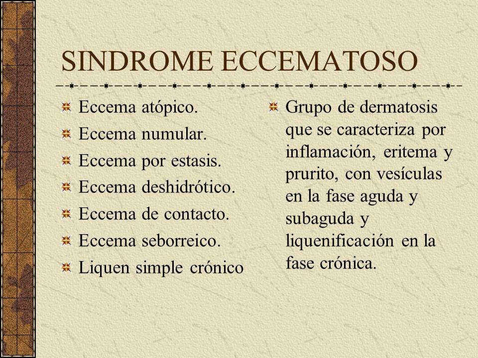 SINDROME ECCEMATOSO Eccema atópico. Eccema numular.