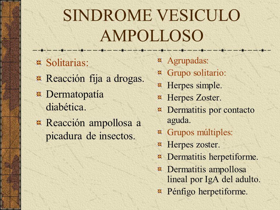 SINDROME VESICULO AMPOLLOSO