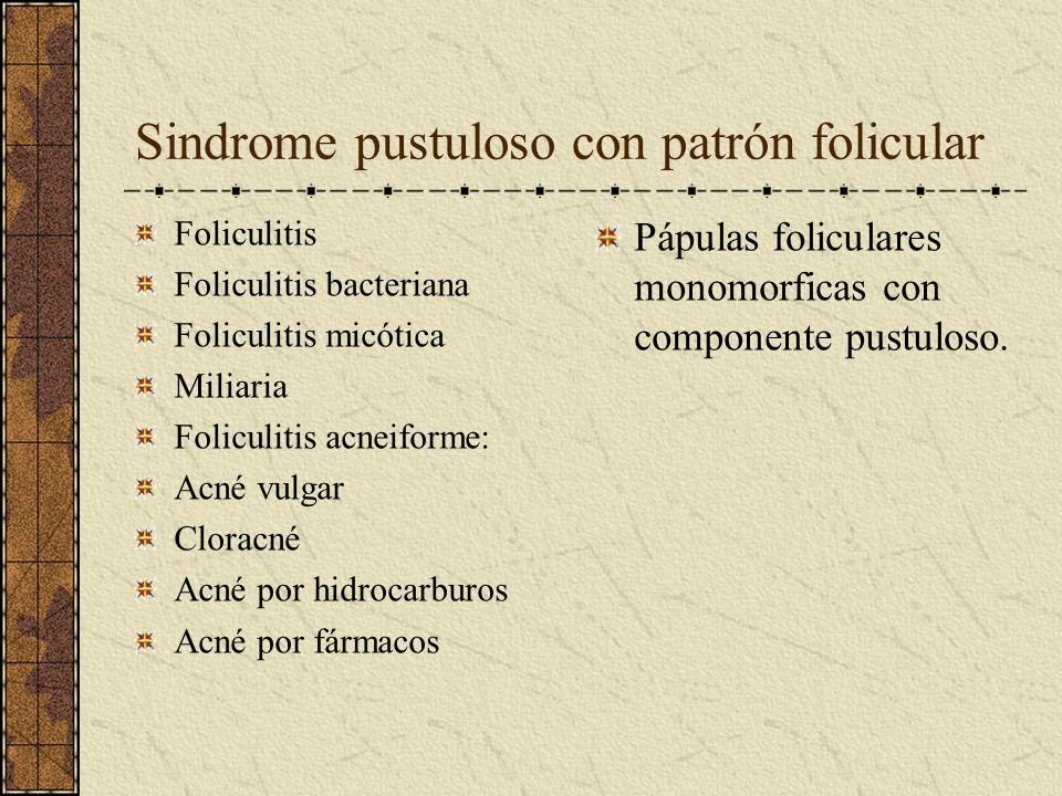 Sindrome pustuloso con patrón folicular