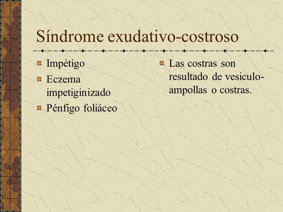 Síndrome exudativo-costroso