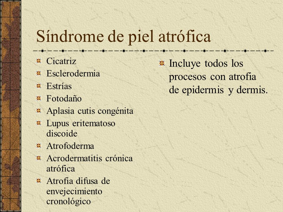 Síndrome de piel atrófica