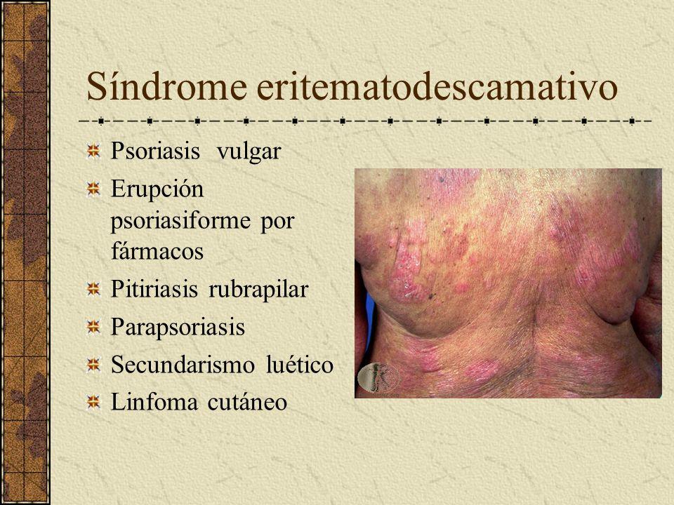 Síndrome eritematodescamativo