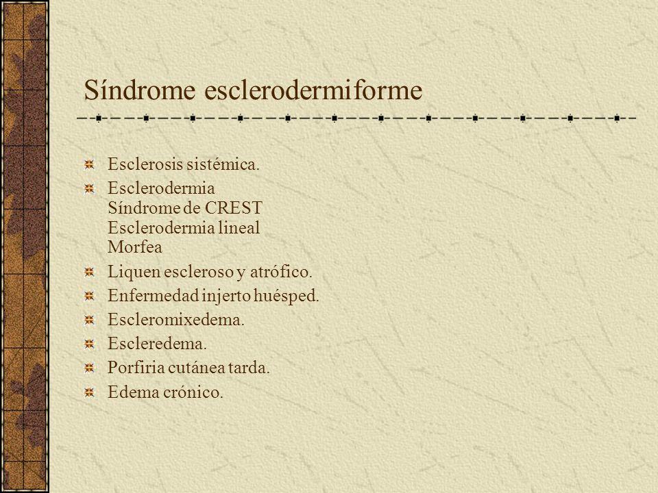 Síndrome esclerodermiforme
