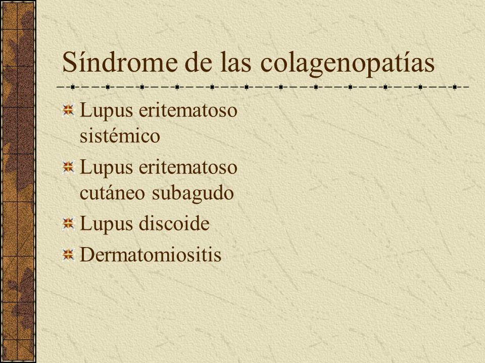 Síndrome de las colagenopatías