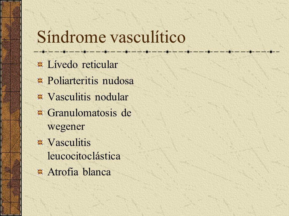 Síndrome vasculítico Lívedo reticular Poliarteritis nudosa