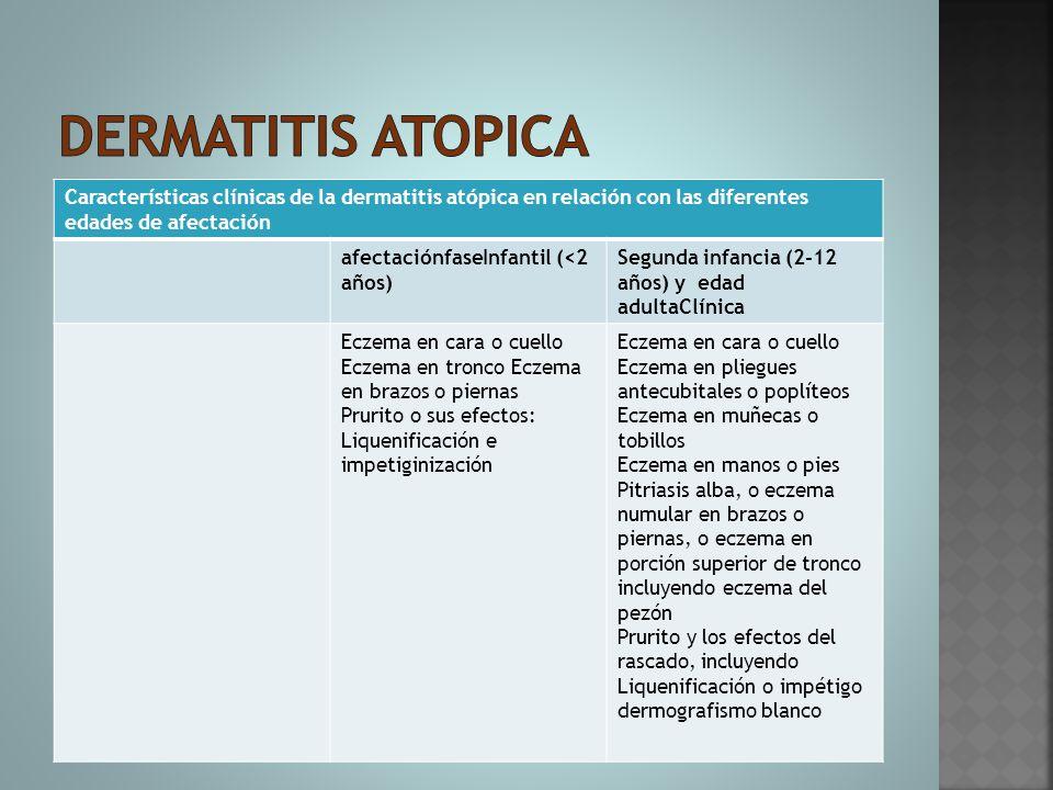 Dermatitis atopica Características clínicas de la dermatitis atópica en relación con las diferentes edades de afectación.