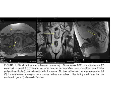 spin-echo T2-weighted MR image obtained with a