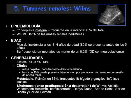 5. Tumores renales: Wilms