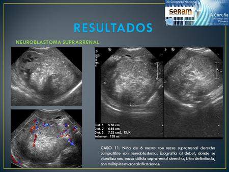 RESULTADOS NEUROBLASTOMA SUPRARRENAL