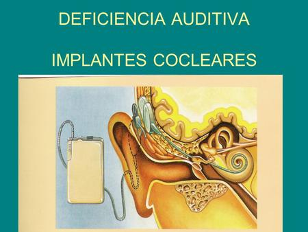 DEFICIENCIA AUDITIVA IMPLANTES COCLEARES