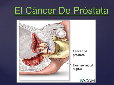 video de diapositivas sobre el cáncer de próstata