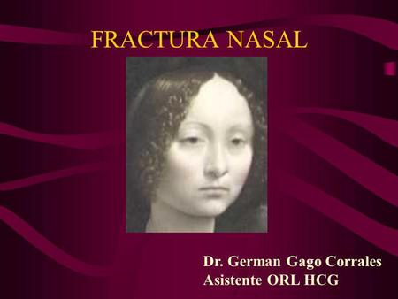 FRACTURA NASAL Dr. German Gago Corrales Asistente ORL HCG Ginevra