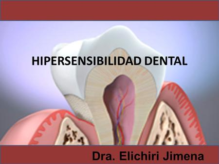 HIPERSENSIBILIDAD DENTAL