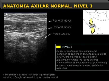 Anatomía qX de la región Axilar Dr. Armando Rivas Valencia. - ppt ...