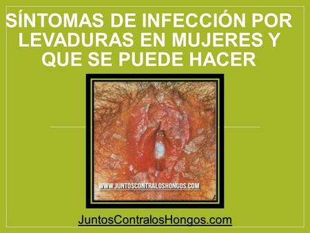como curar la infección de levadura naturalmente