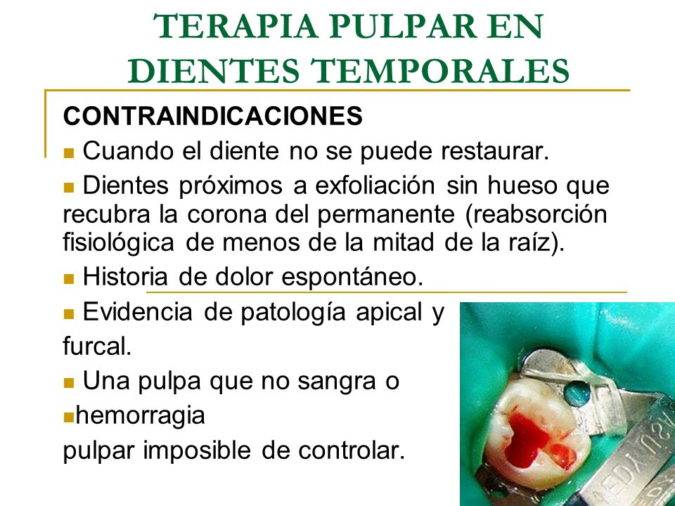 TERAPIA PULPAR EN DIENTES TEMPORALES - ppt video online descargar