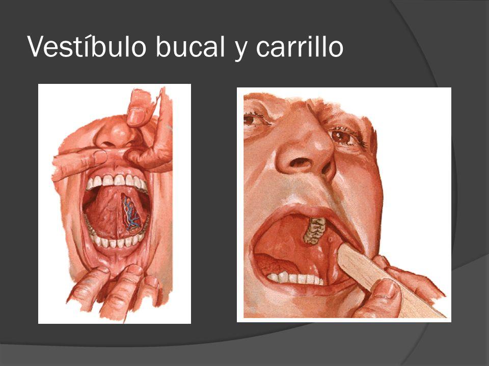 Anatomía de cavidad oral y Faringe Patología de rinofaringe - ppt ...
