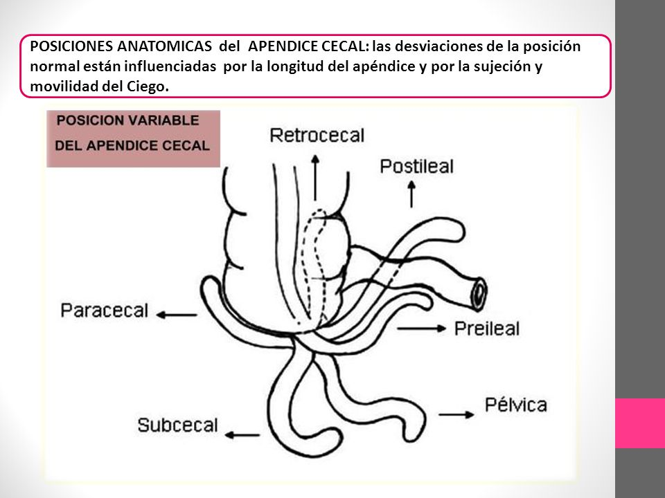 APENDICITIS AGUDA MADELEINE SARMIENTO C.. - ppt video online descargar