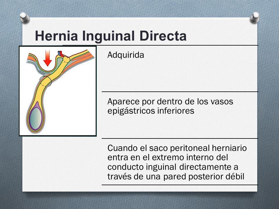 Vistoso Anatomía De La Hernia Inguinal Directa Embellecimiento ...