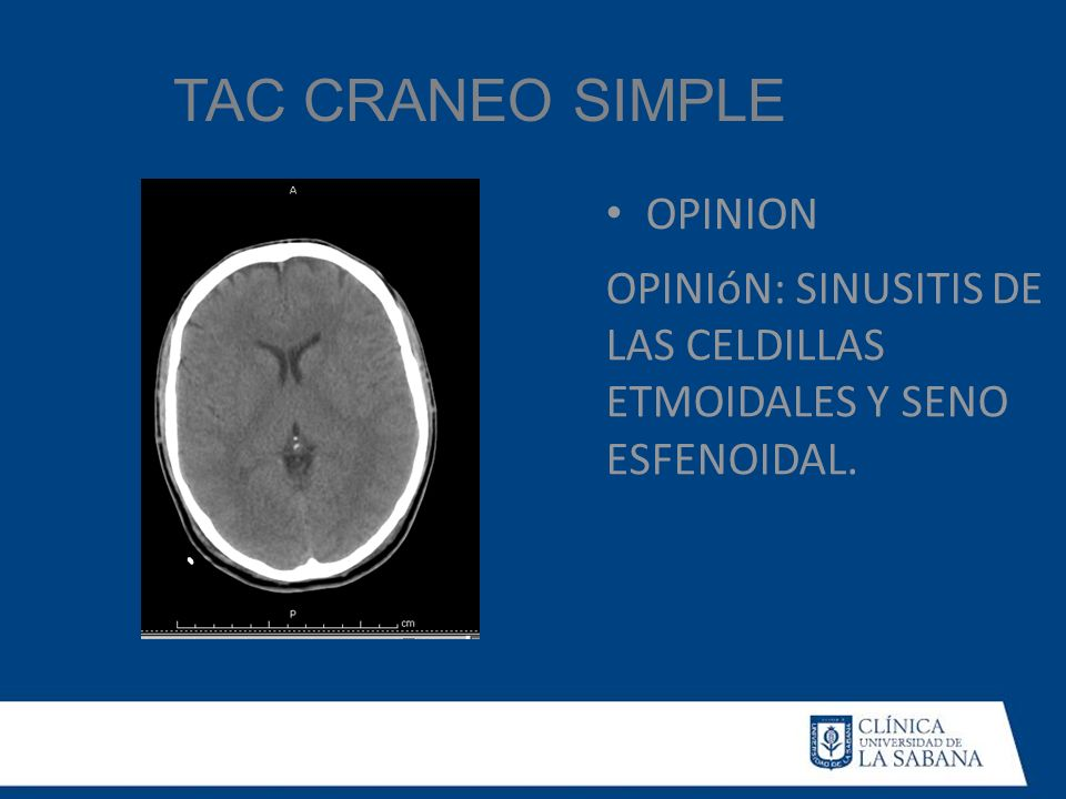 TAC CRANEO SIMPLE OPINION