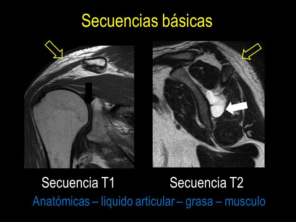 RESONANCIA MAGNETICA DEL HOMBRO - ppt video online descargar