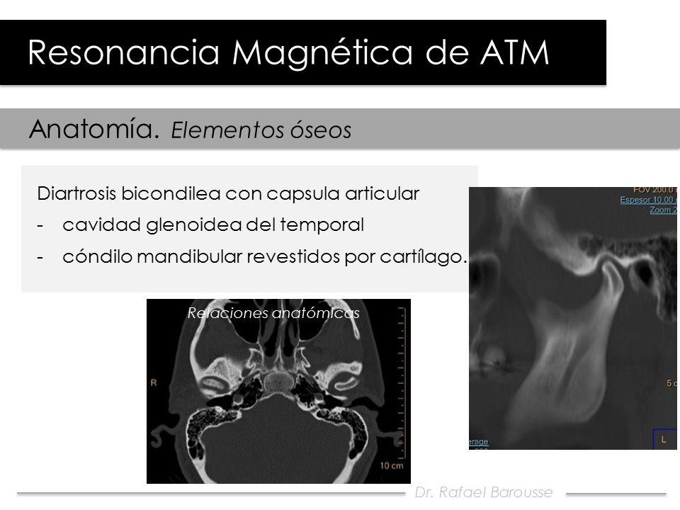 Evaluación por RM de la Disfunción Temporomandibular - ppt video ...