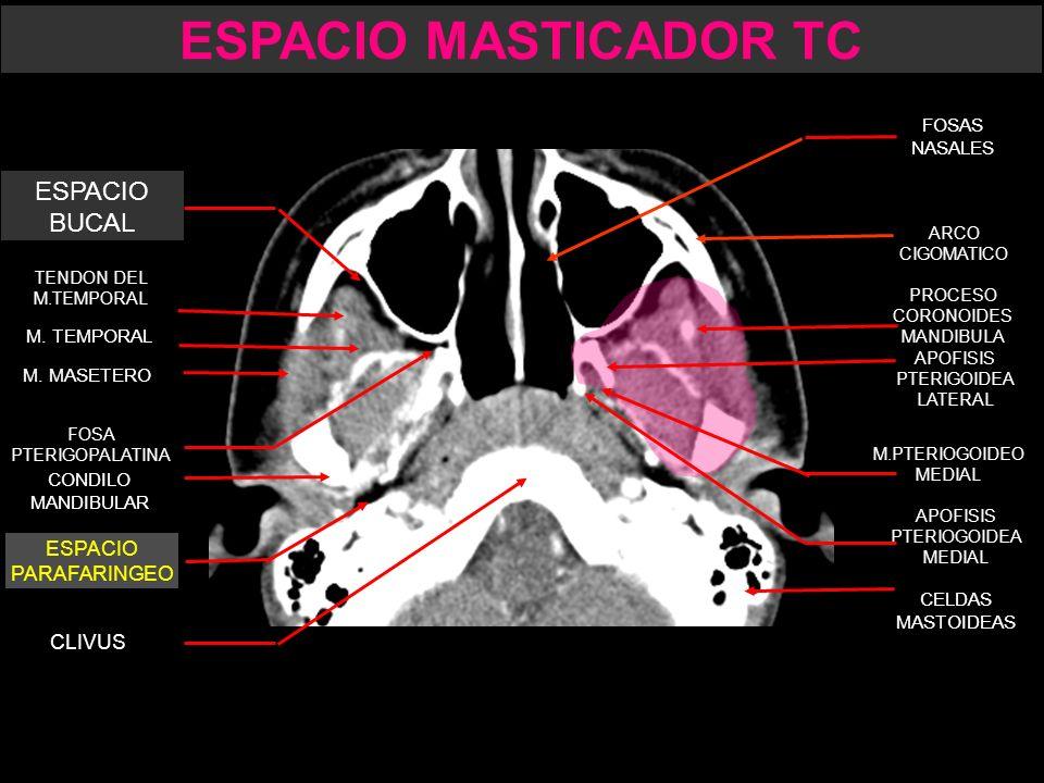 ESPACIO MASTICADOR. - ppt descargar