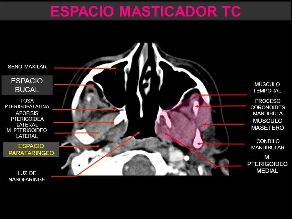 Único Masticador Espacio De La Anatomía Imágenes - Imágenes de ...