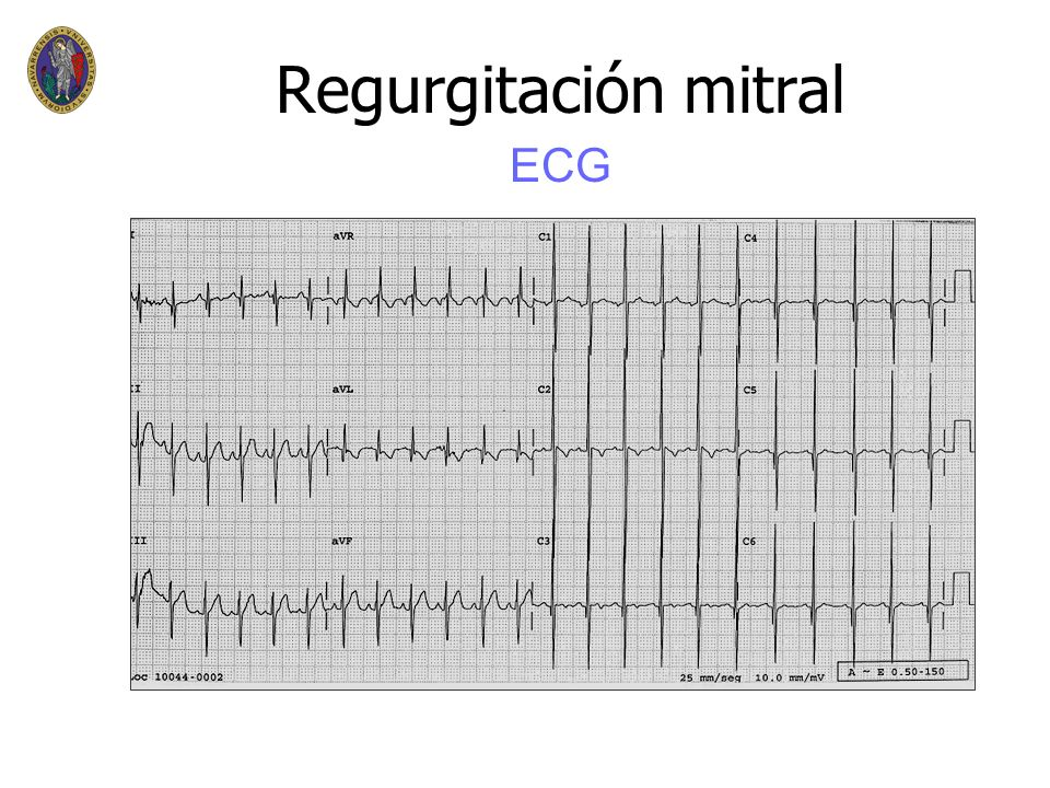 Regurgitación mitral ECG