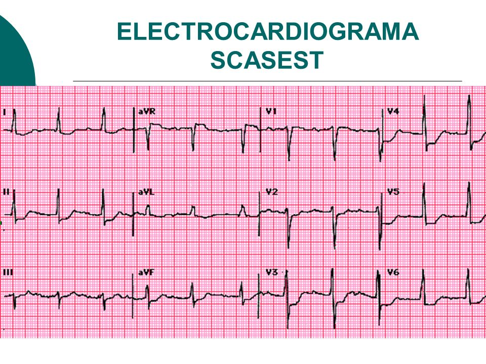 ELECTROCARDIOGRAMA SCASEST