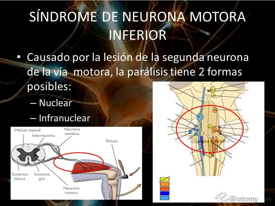 SÍNDROME DE NEURONA MOTORA SUPERIOR E INFERIOR - ppt video online ...