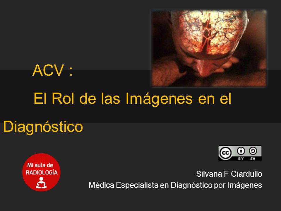 ACV : El Rol de las Imágenes en el Diagnóstico - ppt descargar