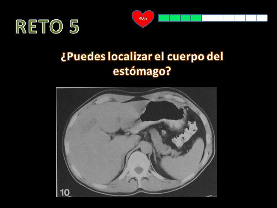 DESAFÍO ANATÓMICO Estómago EMPEZAR A JUGAR CÓMO JUGAR SALIR. - ppt ...