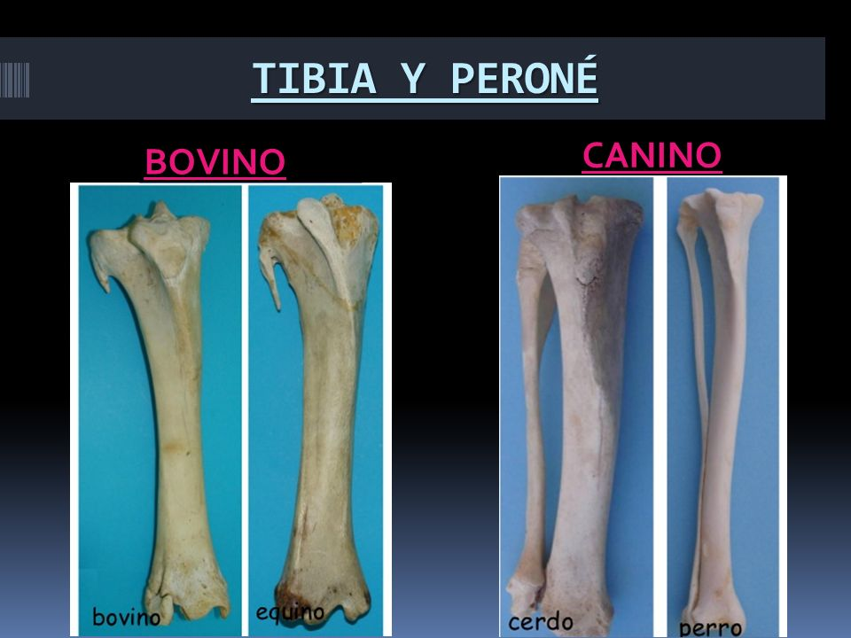 ANATOMIA I TIBIA Y PERONÉ TEMA: (BOVINOS – CANINOS) Integrantes ...