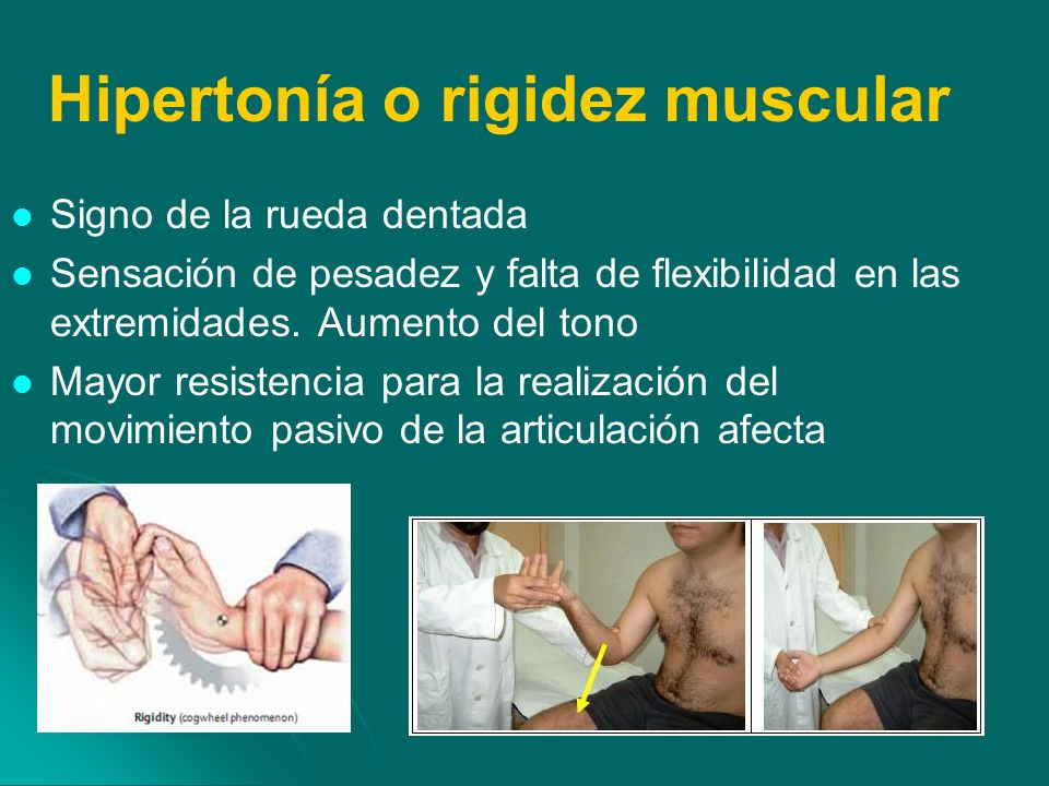 Rigidez muscular causas