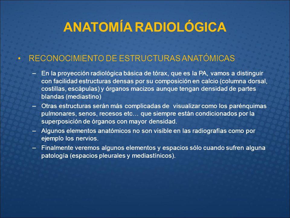 RX de TÓRAX ANATOMÍA RADIOLÓGICA. - ppt video online descargar