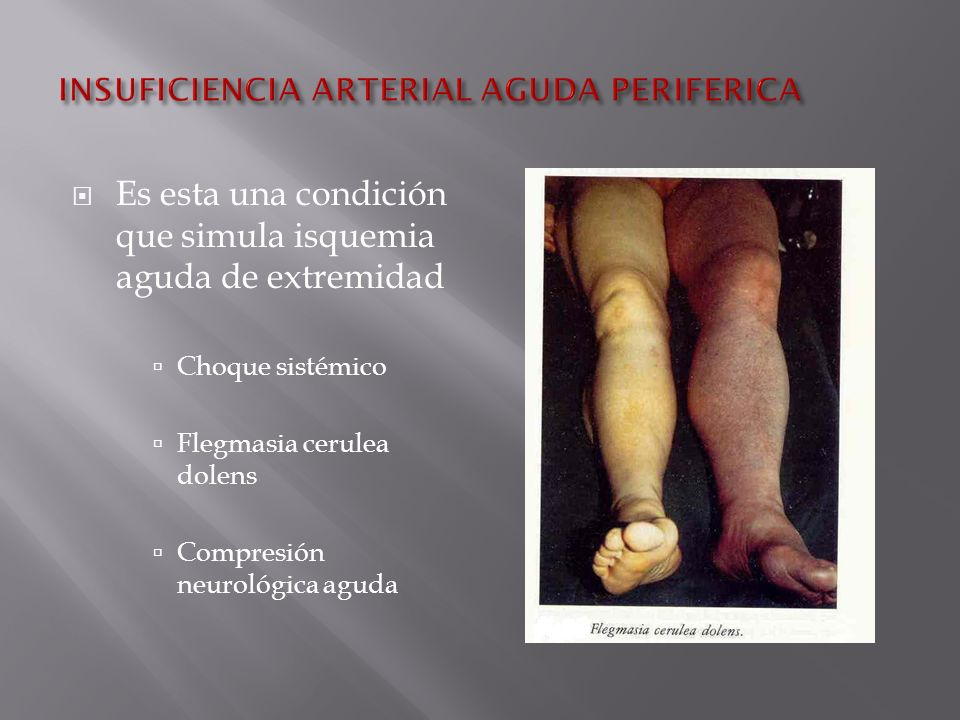 INSUFICIENCIA ARTERIAL PERIFERICA EBOOK DOWNLOAD