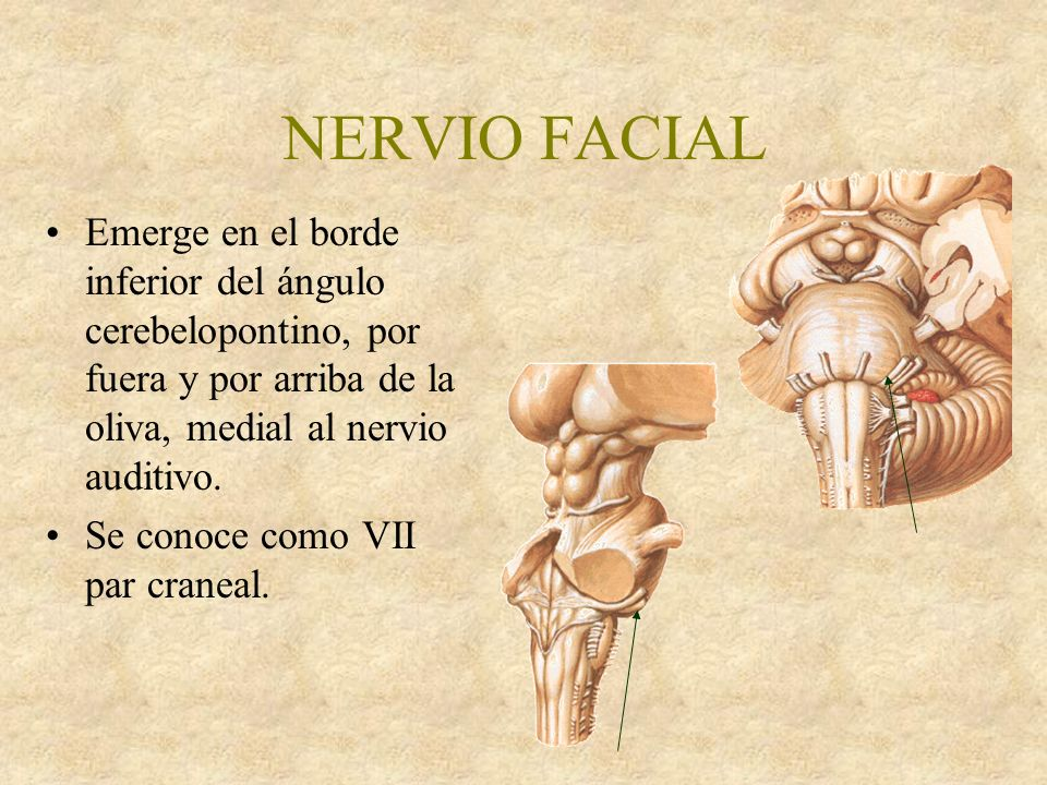 NERVIO FACIAL NERVIO AUDITIVO - ppt video online descargar