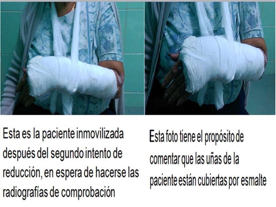 Aquí tenemos el propósito de mostrar que la paciente está con esmalte en  las uñas que 40bb151cc9be