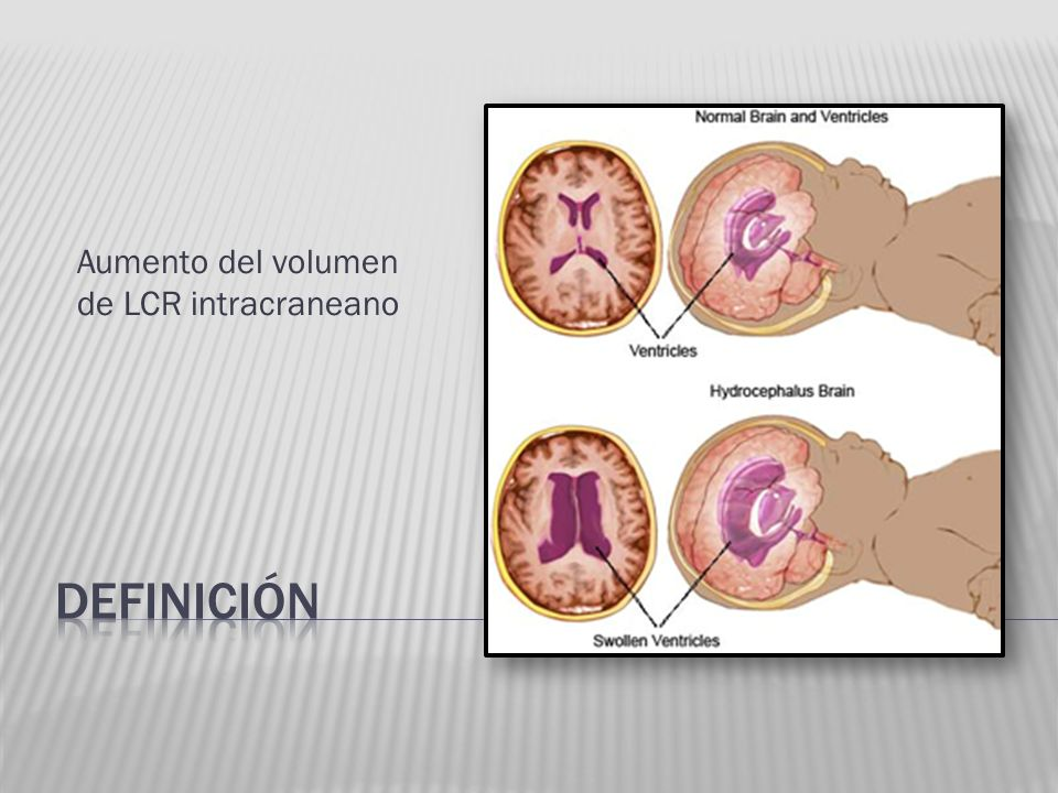 Aumento del volumen de LCR intracraneano