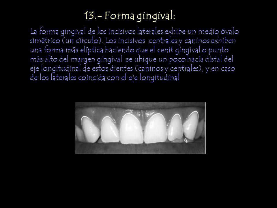 13.- Forma gingival: