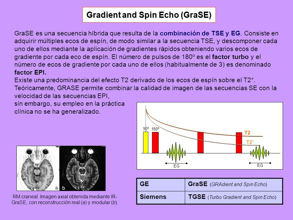 Gradient and Spin Echo (GraSE)