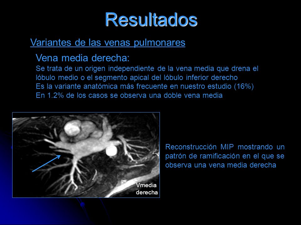 Resultados Anatomía de las venas pulmonares. - ppt descargar