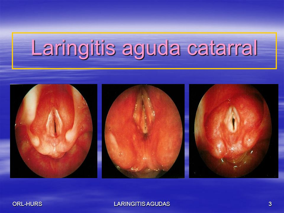 Laringitis aguda catarral