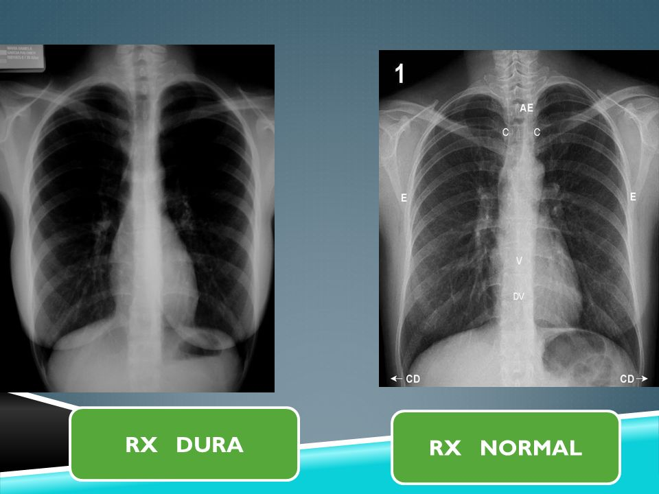 RX DURA RX NORMAL